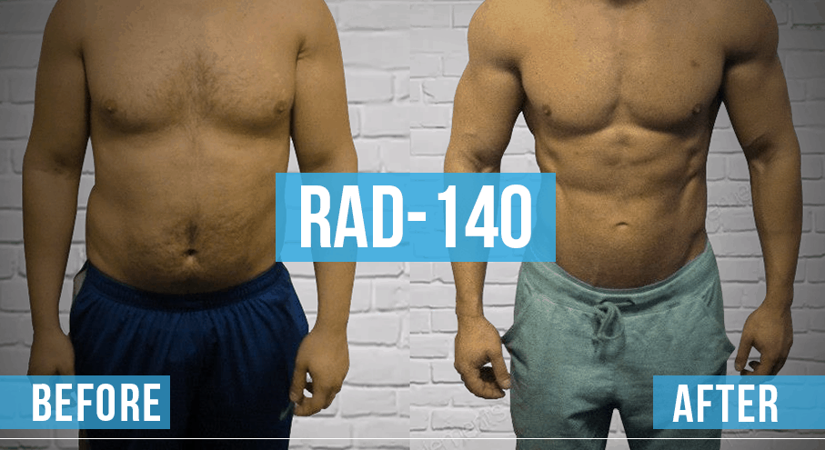 rad-140 before and after