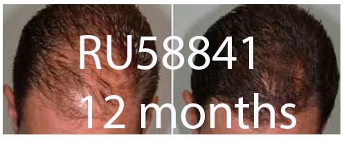 ru58841 12 month results